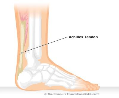 Do dancer Achilles get tendonitis also?