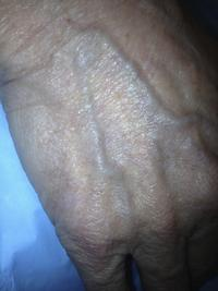 I have bulging veins only in left hand. Not right.  Wats that mean?
