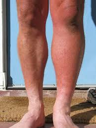 My husband has had an increase of swelling in his one leg mainly calf and some red blotches in it and some more cramping, at what point do we see a do?