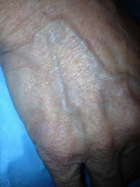 I have swollen veins in my hand and arms for a couple of days they are not hurting should I worry about them?
