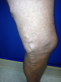 What are the means to cure bleeding varicose veins when one is suffering from the same on two legs?