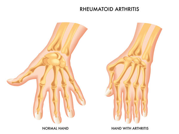 Does rheumatoid arthritis always show up in blood work?
