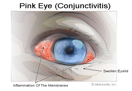 How to make pink eye swelling go down so I can go to work?