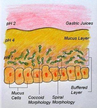 What's the pathogenesis for severe stress causing gastritis?