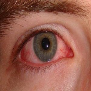 What is the relationaship of trachoma and chlamydia conjunctivitis?