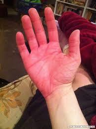 Is pri. or sec. erythromelalgia more common in a 19 year old male? Ive read most secondary causes are in women over 60. I had a CBC and it was fine.