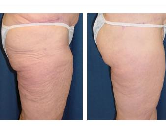 Whats a thigh lift procedure?
