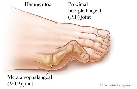 How do they fix hammer toes? And how long must I be off my feet afterwards?