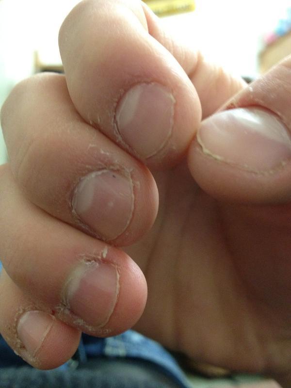 I have some red spots under my finger nail should I be concerned?