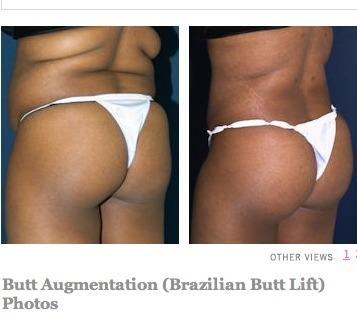 Is a Brazilian butt lift a surgery or some implants?