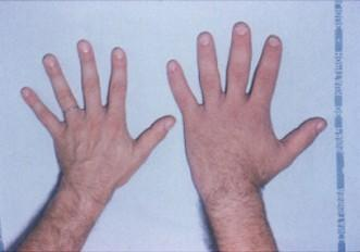 What are the symptoms of acromegaly?