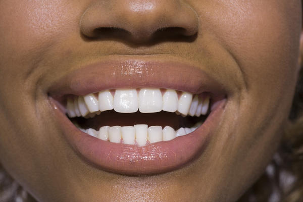 What are the causes of tens of very very tiny holes in gums that feels rough when touching?