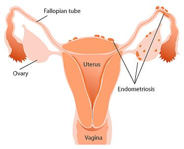 What are the treatment options for endometriosi?