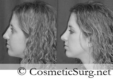 Do I need to sleep sitting up after rhinoplasty? Will I need to sleep sitting up or with my head elevated after rhinoplasty, or can I sleep normally? .