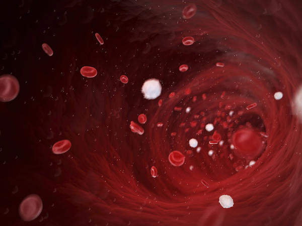 What is the difference between hemoperfusion and hemofiltration?