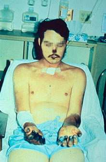 How does pneumonic plague affect your body?