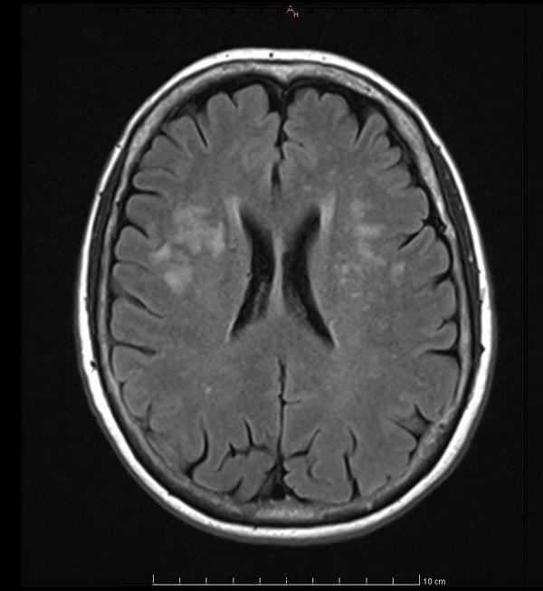 Had normal brain MRI in 2014 (headaches and optical migraines). Doc mentioned white spots apparently from the headaches. It scared me tho. common?