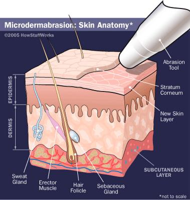 How expensive is microdermabrasion/chemical peel?