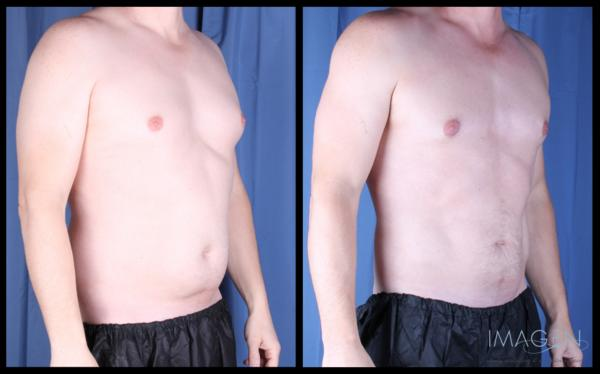 What can I do if smart liposuction never worked on gynamacastia?