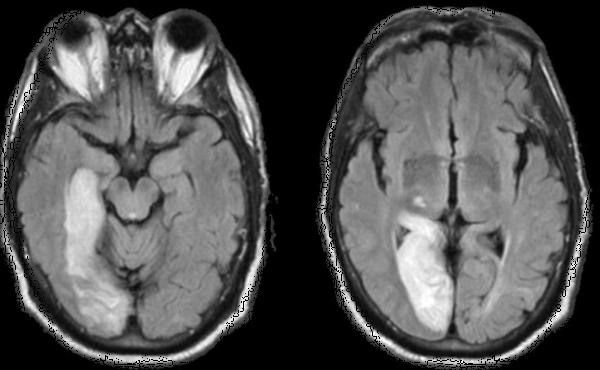 Adopted daughter 7 had an MRI showed old infarcts to left occipital/ left temporal lobes. She was recently dx mosaic turners syndrome. possible cause?