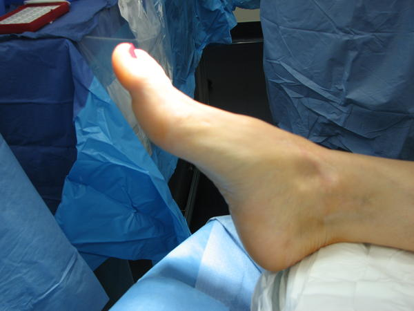 Broke 5th metatarsal, if it's a displaced broken bone will it be a lot harder to heal?
