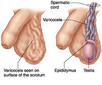 Hello there, i have an uneven looking scrotum and i have an unusual saggy cord like looking/ feeling under my left testicle, what does that indicate?