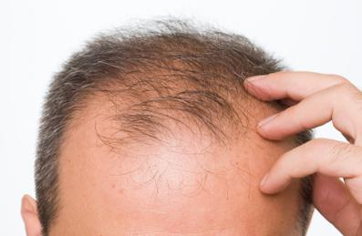 Are there any vitamins that will help treat thin hair?