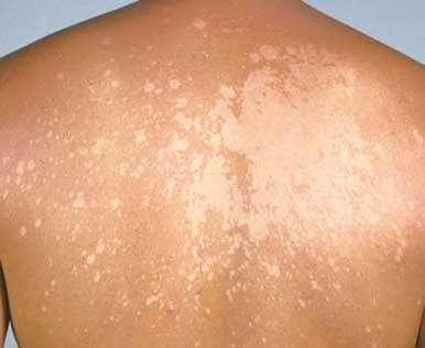 Can  selsun blue shampoo be used  to treat tinea veriscolour?