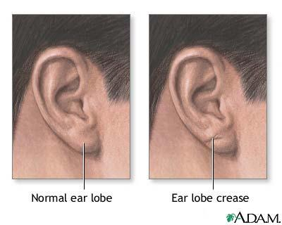 Will collagen injection in ear lobes make your ear lobe thicker?