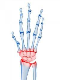 Hello, I am experiencing severe pain in my wrist on my right hand from the trapezium through to the radius.
