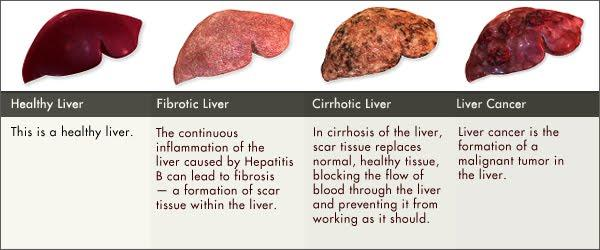 If you have cirrhosis of the liver does that increase your risk of  liver cancer?