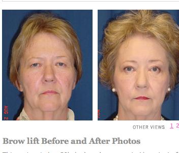 What are the different forms of treatment for lid ptosis?