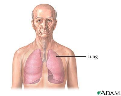 Name natural, homeopathic remedies for lung damage?