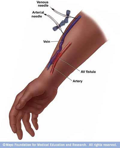 What is vascular access, other than just an i.V.?