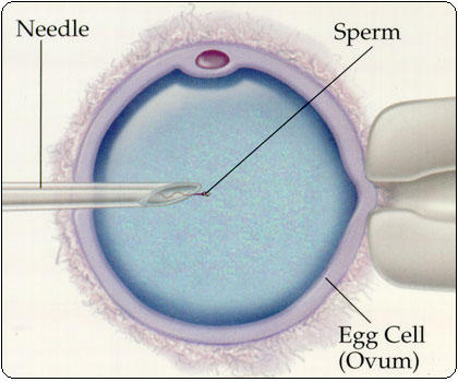 Is artificial insemination a solution for me if I want to optimize chances of in vitro?