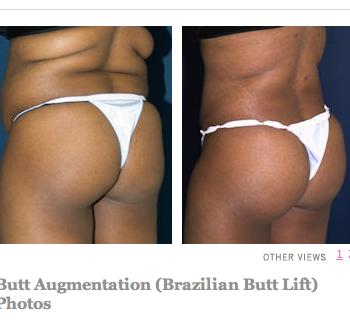 What kind of butt would qualify for butt implants?