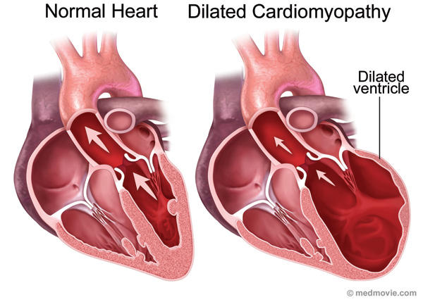What is the treatment for congenital dilated cardiomyopathy?