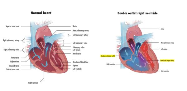 What is a double outlet right ventricle?