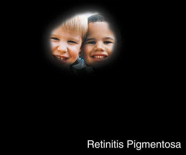What's the hereditary pattern for retinitis pigmentosa?