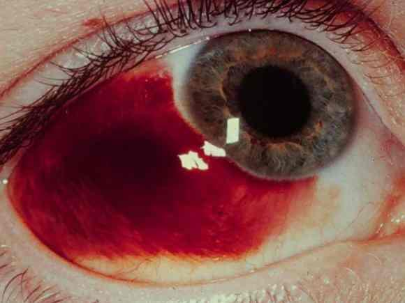 Why is one eye bloodshot badly?  Is bloodshot the same as pinkeye?