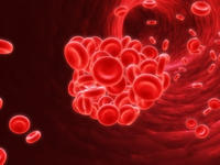 What are the symptoms of deep vein thrombosis (dvt)?