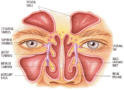 Can sinus cause distorted vision?