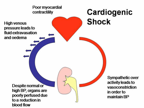 How could  a teenager have cardiogenic shock?
