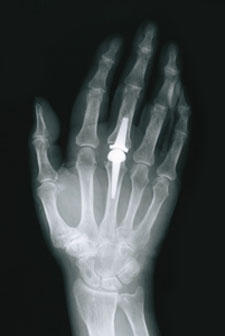Will I have full function in my fingers after finger joint surgery?