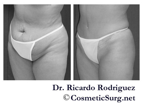 Hello.um.. i have about 4 to 5 slouch lines their kind of deep and bery visible.and i was wondering would me getting a tummy tuck make it less visible?