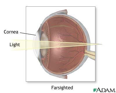 What causes farsightedness to occur?