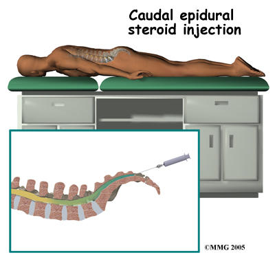 What do I need to know about a  caudal epidural injection?
