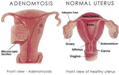 What are possible treatment options for adenomyosis?