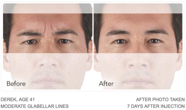 is there a topical alternative to botox?