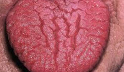 My daughter has a Fissured Tongue, should i be concerned . whats the cure for it ?